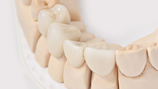 Model of teeth with fixed bridge restoration