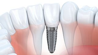 Animation of an implant supported dental crown