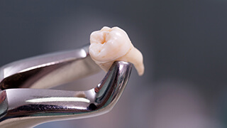 Metal forceps holding an extracted tooth