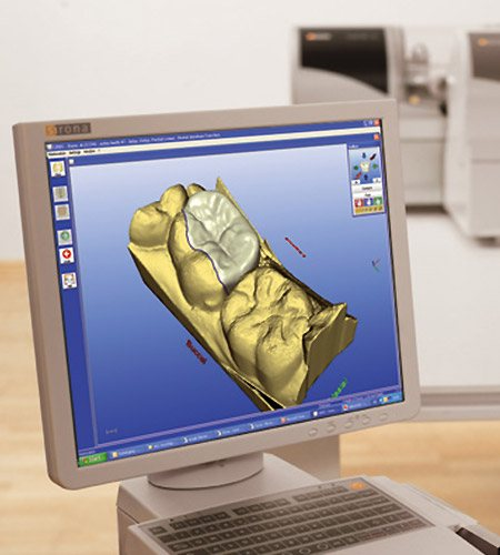 Dental restoration design with the CEREC system