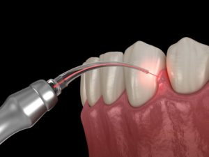 laser dentistry being used for gum treatment during COVID-19