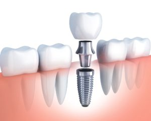 The Importance Of Socket Preservation After A Tooth Extraction